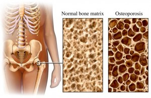 osteoporosis_porosidad