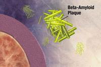 Enzimas actuando sobre la proteína precursora amiloidea, a la que cortan en fragmentos, uno de los cuales es beta-amyloide. Los tres genes identificados participan en la eliminación de esta proteína. Imagen: NIH.