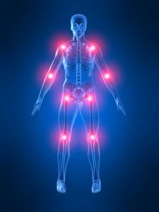 artritis 3